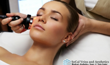 SoCal Vein and Aesthetics -$125 for Varicose Vein Facial Laser Treatment at SoCal Vein and Aesthetics in Murrieta!