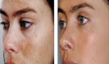 Turn Skin Care-$150 value for $49: TCA Peel, The End Of Summer Skin Rejuvinator