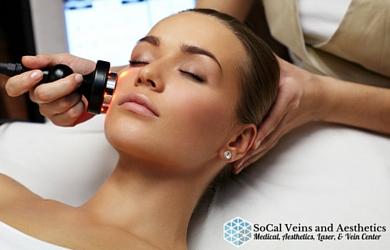 SoCal Vein and Aesthetics -$125 for Varicose Vein Facial Laser Treatment at SoCal Vein and Aesthetics in Murrieta!