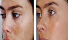 Turn Skin Care-$150 value for $49: TCA Peel, Skin Rejuvinator