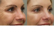 Caring Doctor Medical Group-Reduce Those Unwanted Wrinkles, Frown Lines or Crows Feet with Botox